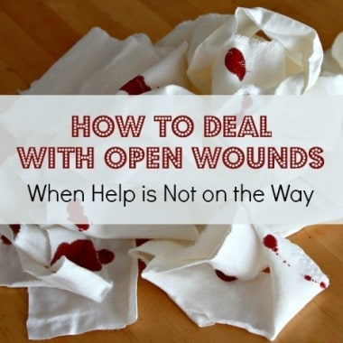 How to Deal With Open Wounds When Help is Not on the Way