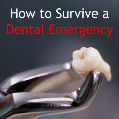 How to Survive a Dental Emergency