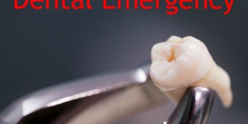How to Survive a Dental Emergency: From Temporary Toothache