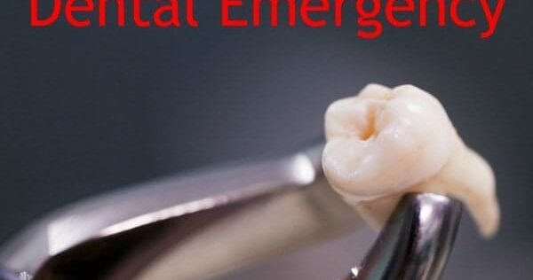 How to Survive a Dental Emergency: From Temporary Toothache to Long Term Situations