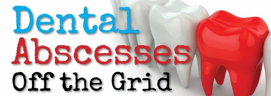 Dealing with Dental Abscesses Off The Grid