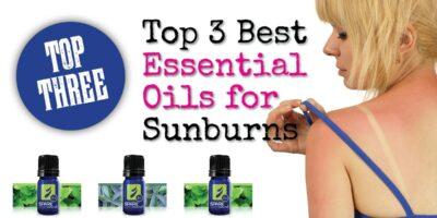 Top 3 Best Essential Oils for Sunburns