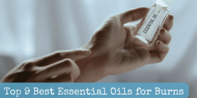 Top 9 Best Essential Oils for Burns