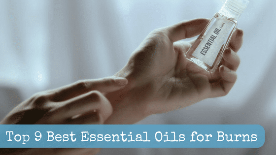 Top 9 Best Essential Oils for Burns