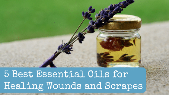 10 Best Essential Oils for Healing Wounds and Scrapes